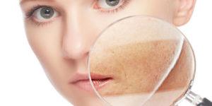 Consejos para cuidar la dermatitis atópica